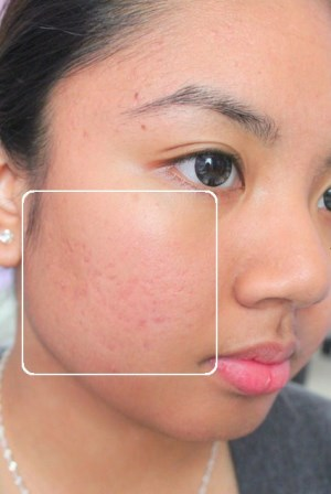 How-to-get-rid-of-acne-scars-naturally-at-home - Millefiori